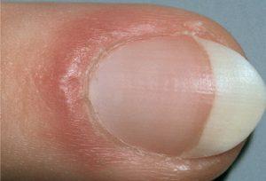 dolore alle unghie dottoressa salvi
