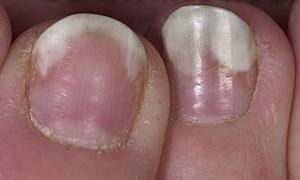 onicolisi malattie delle unghie dottoressa salvi
