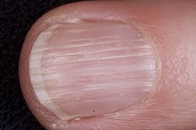 righe verticali unghie dottoressa salvi