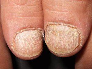 trachionichia malattie unghie dottoressa salvi