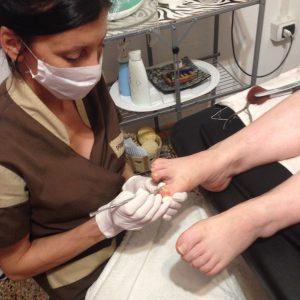 trattamento funghi piedi dottoressa salvi (15)