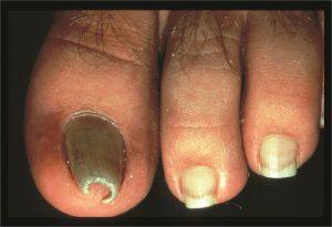 unghie ad artiglio dottoressa salvi