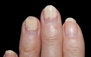 unghie bianche con subungueale rosa dottoressa salvi