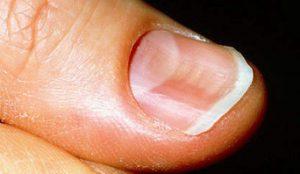 unghie con depressioni dottoressa salvi