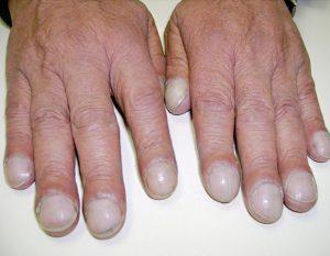 unghie curve dottoressa salvi