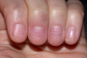 unghie linee di beau dottoressa salvi